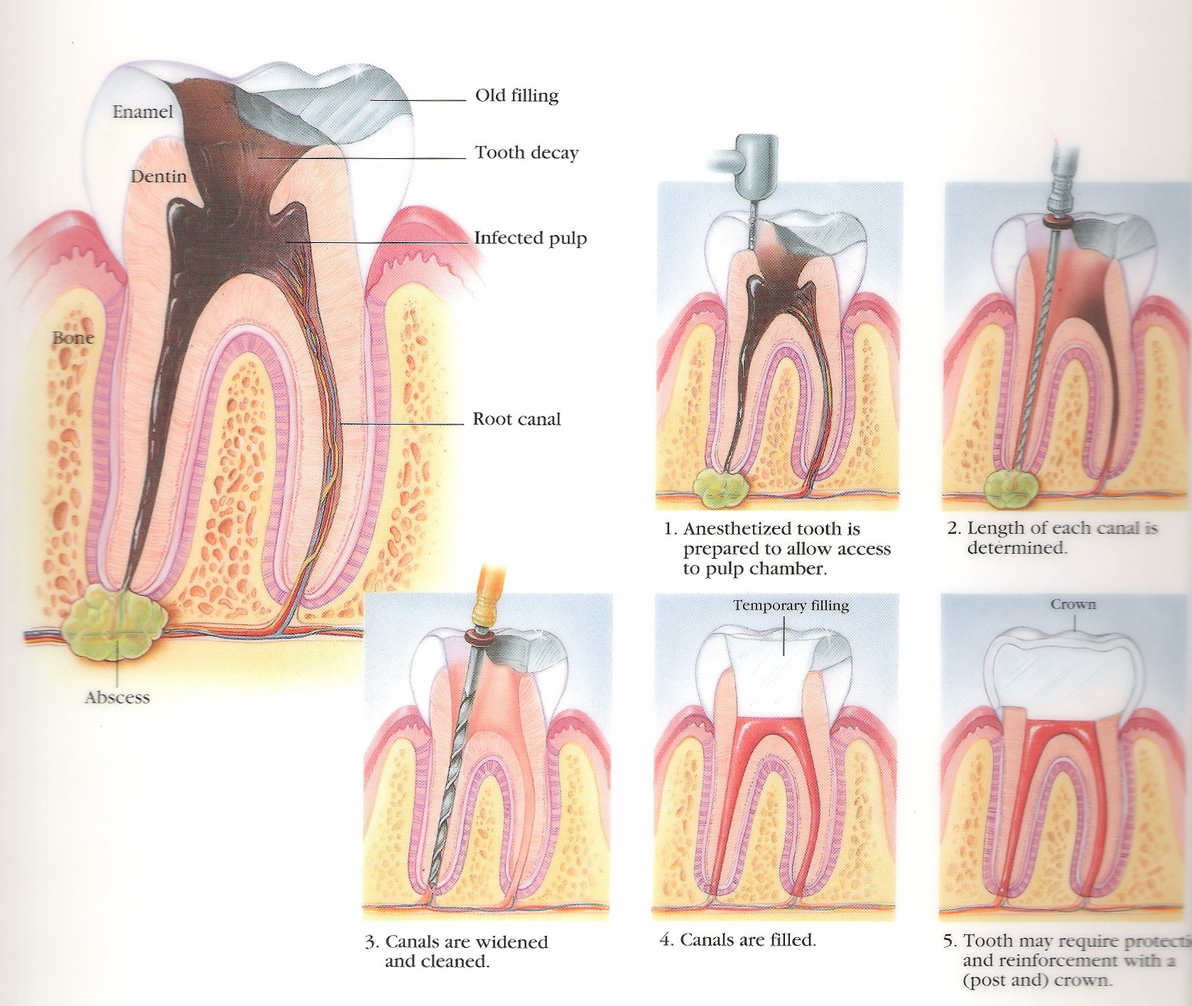 Root Canals Apex Dental